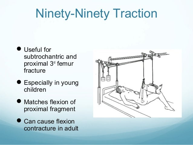 Ninety-Ninety Traction  Useful for  subtrochantric and proximal 3rd femur fracture   Especially in young children   Mat...