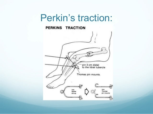 Perkin's traction: