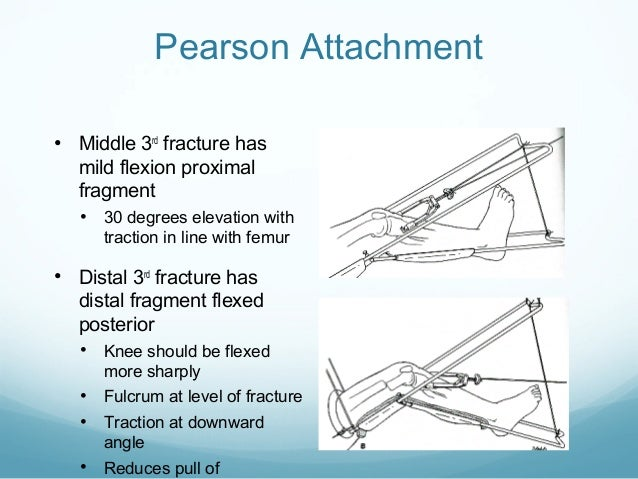 application of traction in orthopaedics