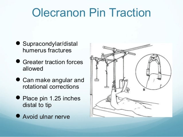 Olecranon Pin Traction  Supracondylar/distal humerus fractures   Greater traction forces allowed   Can make angular and...