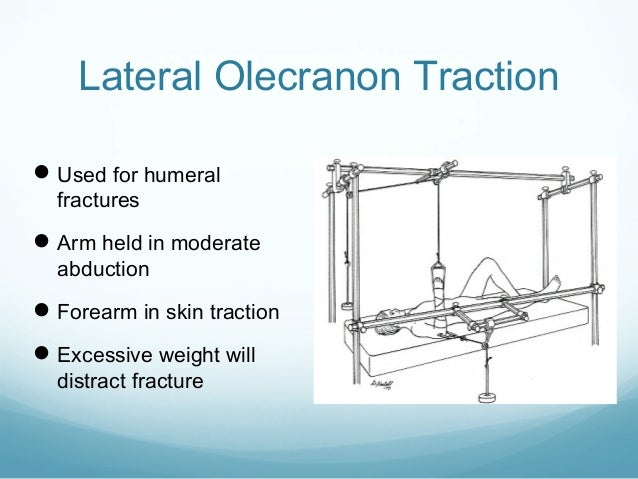 Lateral Olecranon Traction  Used for humeral fractures   Arm held in moderate abduction   Forearm in skin traction  Ex...