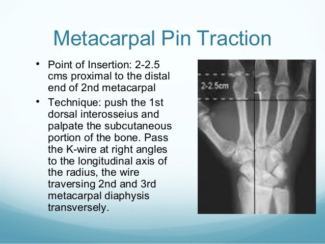 Metacarpal Pin Traction • Point of Insertion: 2-2.5  cms proximal to the distal end of 2nd metacarpal • Technique: push th...