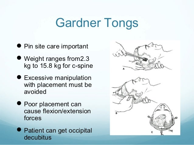 Application of traction in orthopaedics for Gardner website