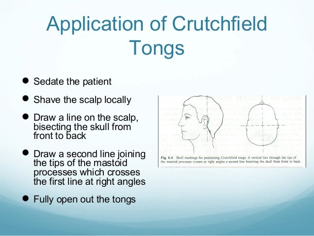 Application of Crutchfield Tongs  Sedate the patient  Shave the scalp locally  Draw a line on the scalp, bisecting the ...