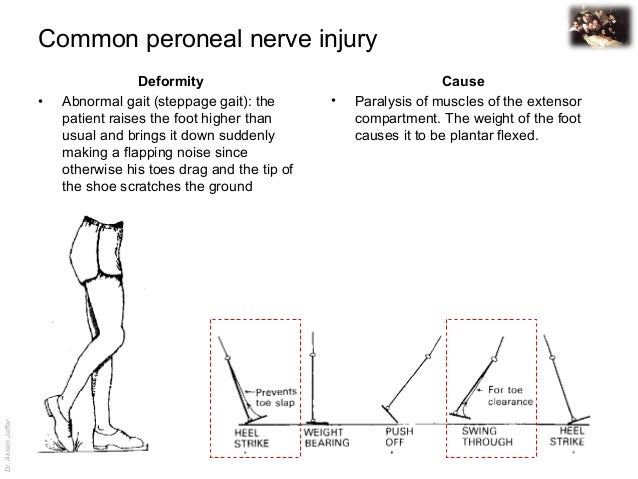 Applied anatomy common peroneal nerve injury