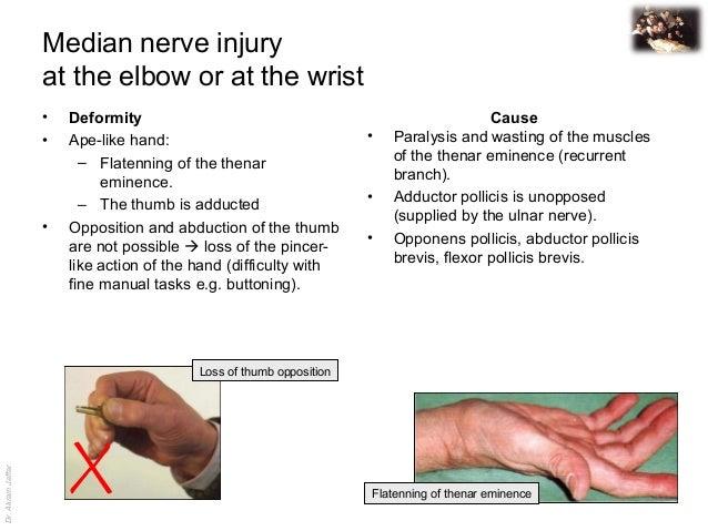 Applied Anatomy Median Nerve Injury