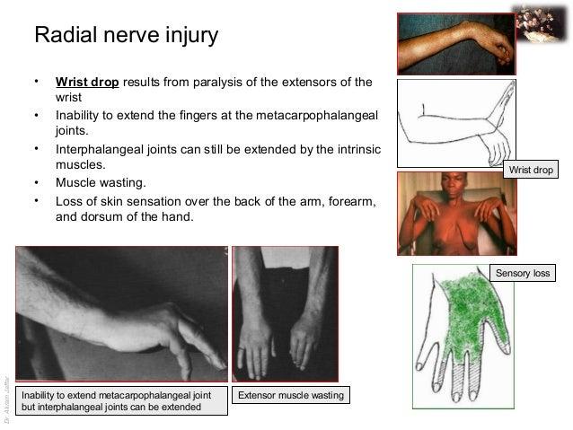Applied anatomy radial nerve injury