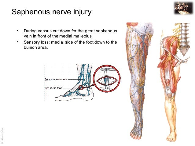 Applied anatomy saphenous nerve injury