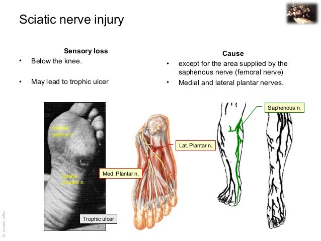 Applied Anatomy Sciatic Nerve Injury