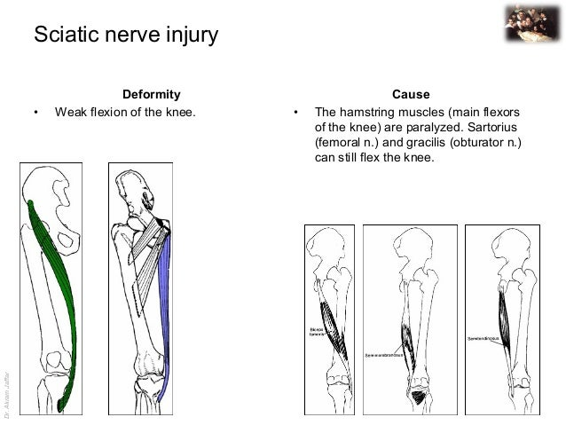 applied anatomy sciatic nerve injury, Muscles
