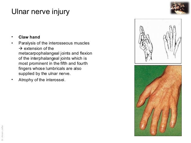 Dr.AkramJaffar Ulnar nerve injury • Claw hand • Paralysis of the interosseous muscles  extension of the metacarpophalange...