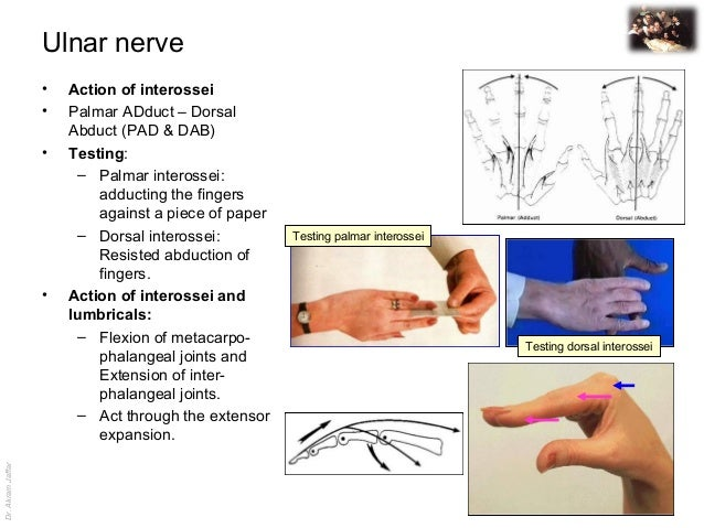 Dr.AkramJaffar Ulnar nerve • Action of interossei • Palmar ADduct – Dorsal Abduct (PAD & DAB) • Testing: – Palmar inteross...