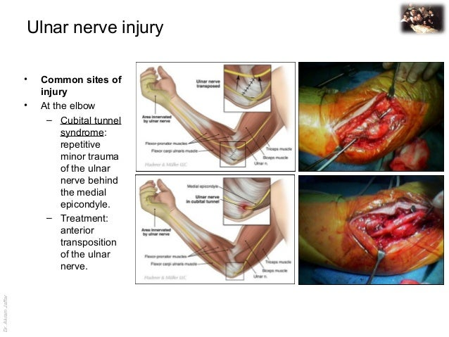 ulnar nerve - photo #19