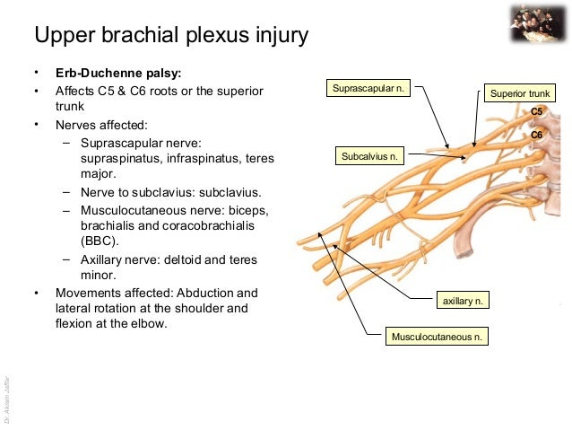 Applied anatomy upper brachial pleuxs injury