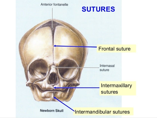 sagittal suture closure - 638×479