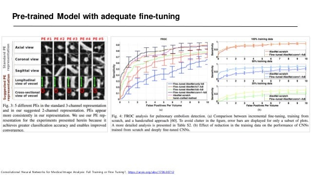 Pre-trained Model with adequate fine-tuning Convolutional Neural Networks for Medical Image Analysis: Full Training or Fin...