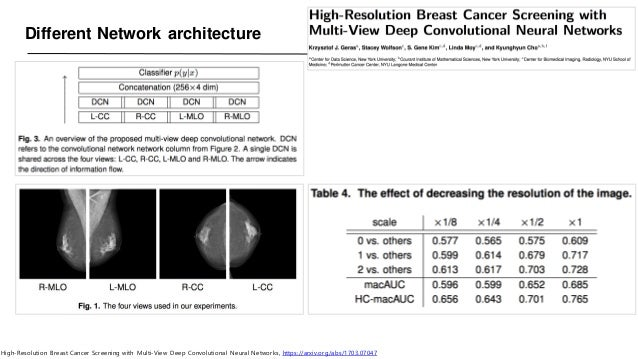 Different Network architecture High-Resolution Breast Cancer Screening with Multi-View Deep Convolutional Neural Networks,...