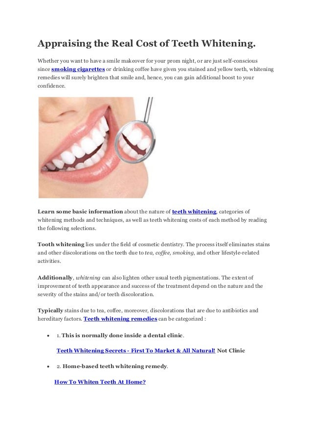 Appraising the Real Cost of Teeth Whitening. Whether you want to have a smile makeover for your prom night, or are just se...