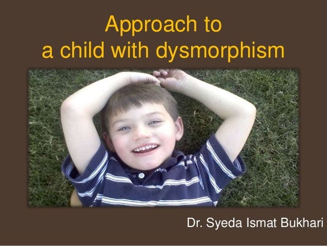 Approach to a child with dysmorphism Dr. Syeda Ismat Bukhari