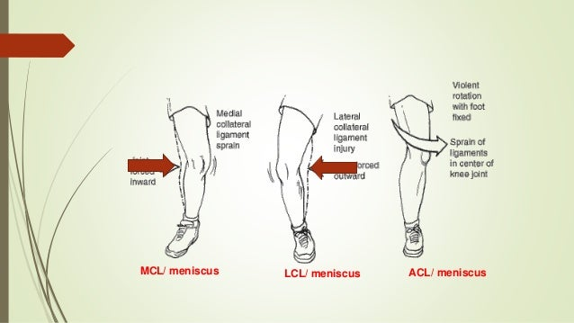 Approach to acute knee injuries (knee injury)