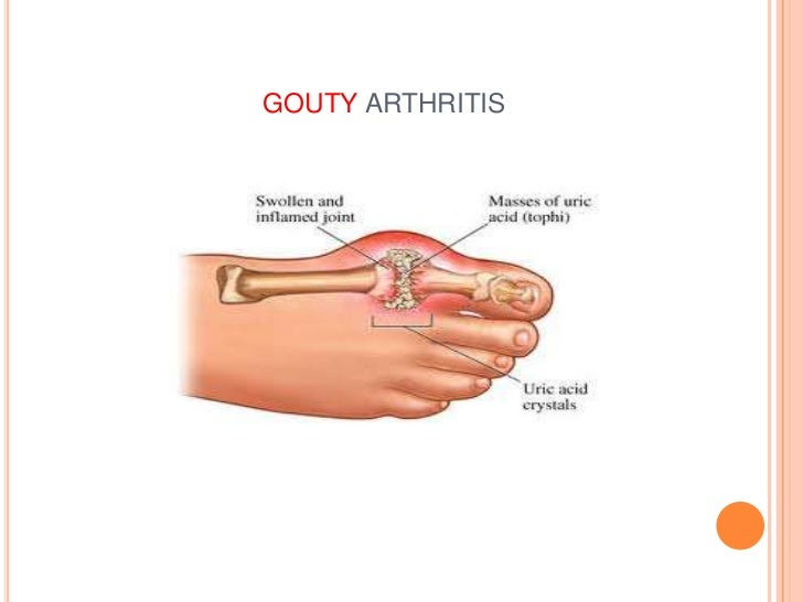 Gout | Arthritis | CDC