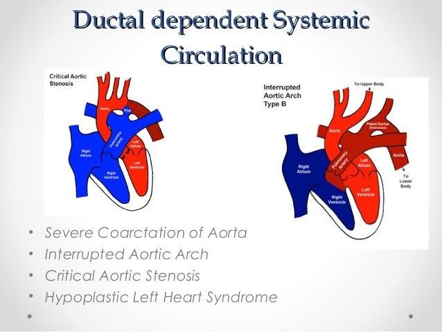echocardiography in congenital heart disease pdf