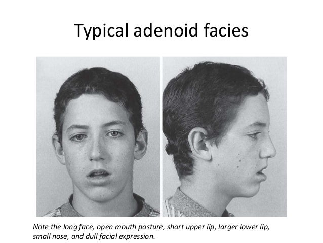 Approach to child with mouth breathing and snoring