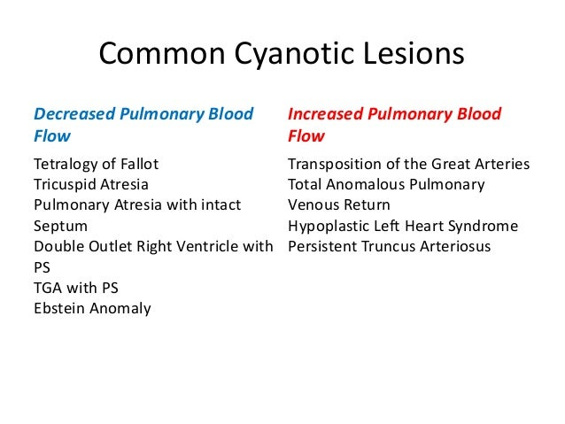 Approach To Congenital Cyanotic Heart Diseases on chest pain lungs