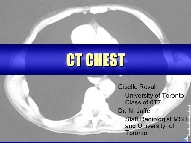 CT CHEST      Giselle Revah        University of Toronto        Class of 0T7      Dr. N. Jaffer        Staff Radiologist M...