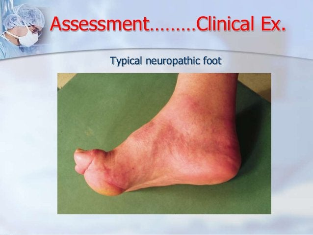 Assessment………Clinical Ex.  Typical neuropathic foot