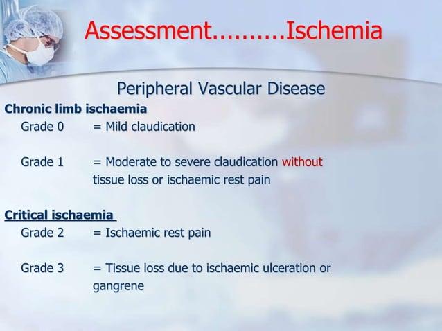 Assessment..........Ischemia  Peripheral Vascular Disease  Chronic limb ischaemia  Grade 0 = Mild claudication  Grade 1 = ...