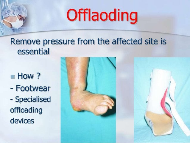 Offlaoding  Remove pressure from the affected site is  essential   How ?  - Footwear  - Specialised  offloading  devices