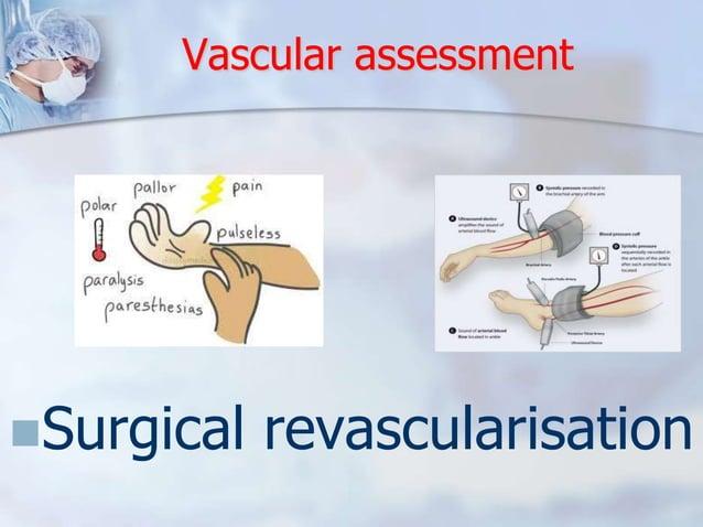 Vascular assessment  Surgical revascularisation