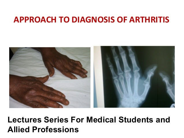 APPROACH TO DIAGNOSIS OF ARTHRITIS  Lectures Series For Medical Students and Allied Professions