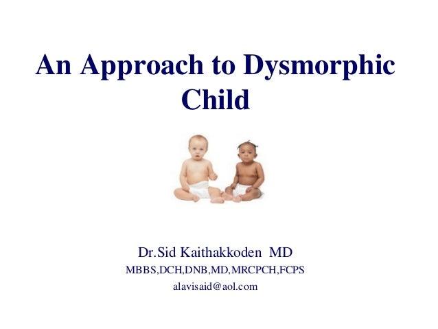 An Approach to Dysmorphic Child Dr.Sid Kaithakkoden MD MBBS,DCH,DNB,MD,MRCPCH,FCPS alavisaid@aol.com