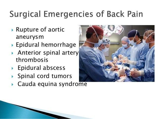  Rupture of aortic aneurysm  Epidural hemorrhage  Anterior spinal artery thrombosis  Epidural abscess  Spinal cord tu...