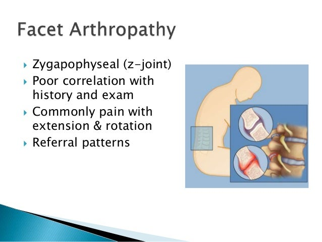 Approach to Low Back Pain