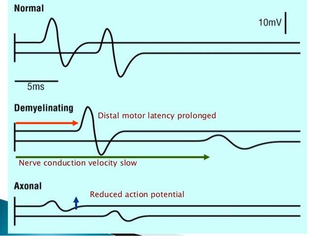 aksonal neuropati