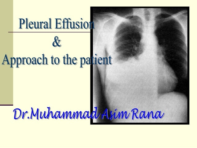 Definition  Pleural effusion is the accumulation of fluid in  the pleural space.  The pleural space lies between the lun...