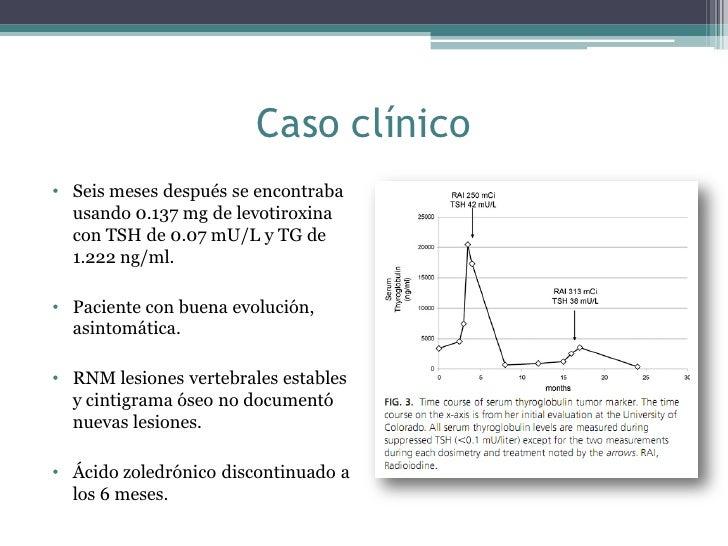 Enfoque del paciente con Cancer de Tiroides y Metástasis
