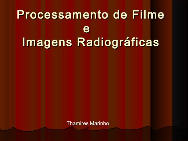 Processamento de Filme e  Imagens Radiográficas  Thamires Marinho