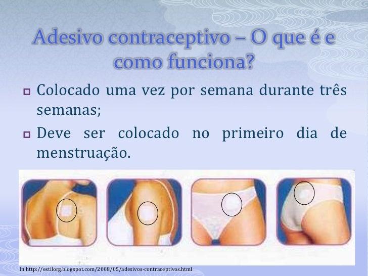 Adesivo Para Reposição Hormonal Feminina ~ Métodos Contraceptivos Hormonais ou Químicos