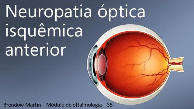 Neuropatia óptica isquêmica anterior Brendow Martin – Módulo de oftalmologia – S5