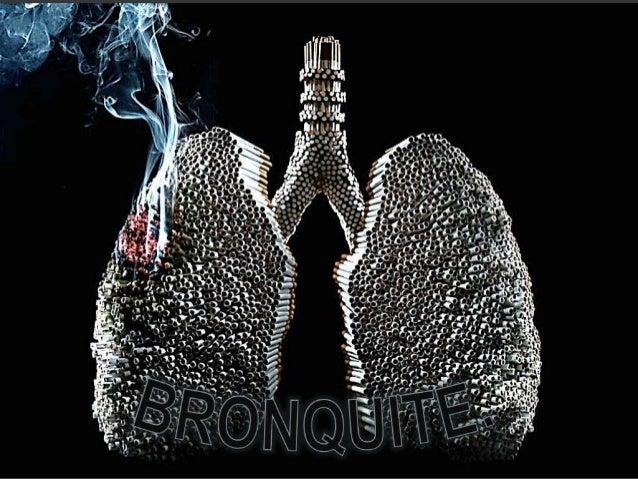 É  definida em base clinica pela presença constante de tosse e secreções brônquicas, suficientes para causarem expectoraç...