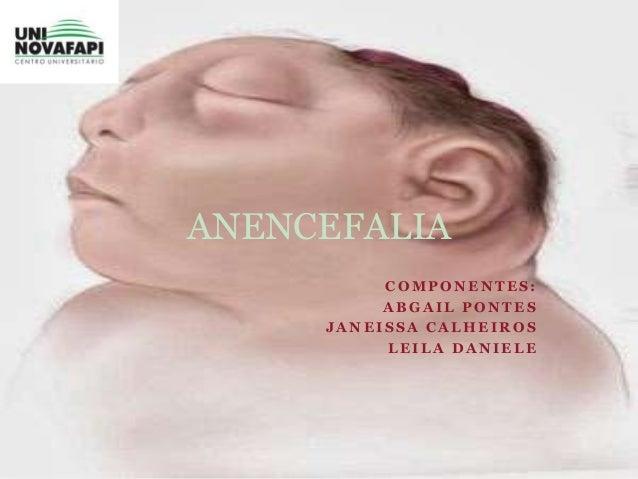ANENCEFALIA  COMPONENTES:  ABGAIL PONTES  JANEISSA CALHEIROS  LEILA DANIELE