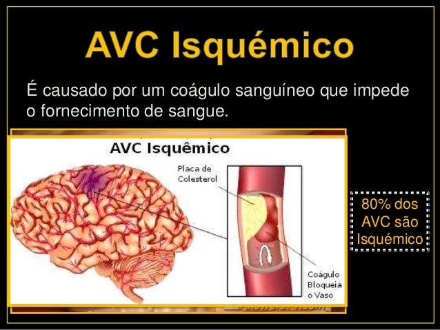 AVC- Acidente Vascular Cerebral