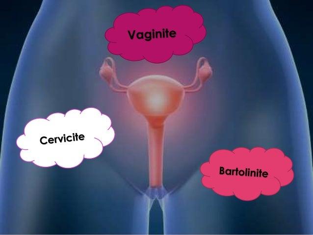 A s doenças e perturbações do aparelho reprodutor feminino alteram a saúde física e emocional de milhões de mulheres, todo...
