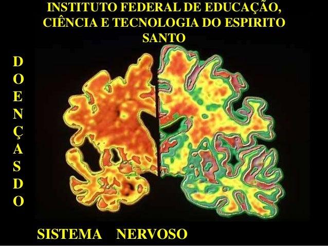 INSTITUTO FEDERAL DE EDUCAÇÃO, CIÊNCIA E TECNOLOGIA DO ESPIRITO SANTO D O E N Ç A S D O SISTEMA NERVOSO