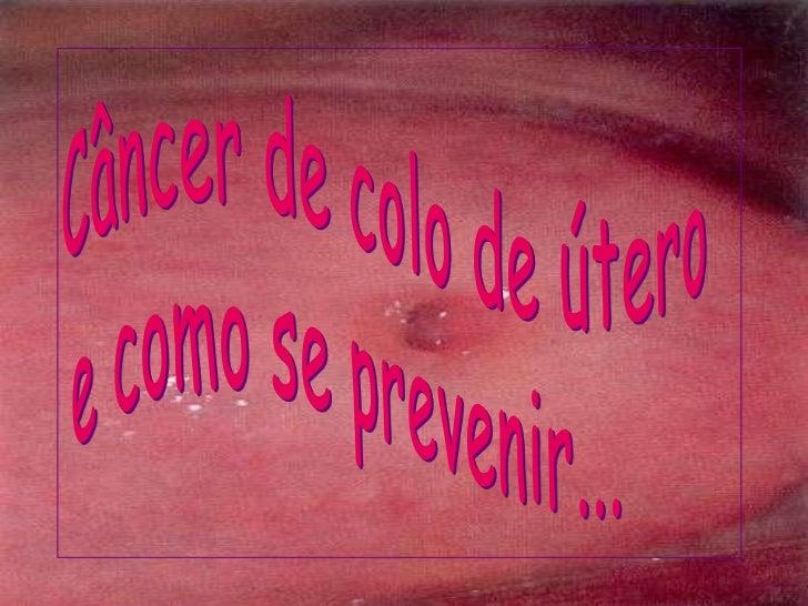 Câncer de colo de útero <br />e como se prevenir...<br />