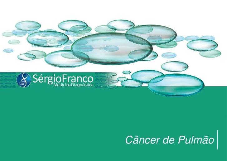 Câncer de Pulmão<br />
